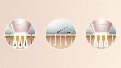 Dermatologlarla birlikte geliştirilen, evde kullanıma yönelik uzman IPL teknolojisi